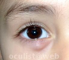 papilloma sotto occhio