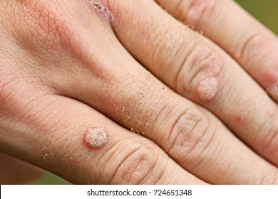 warts on hands pictures)