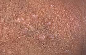 papiloma genitales masculinos