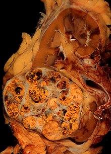 Timpul de analiză histologic de analiză a adenomului de prostată