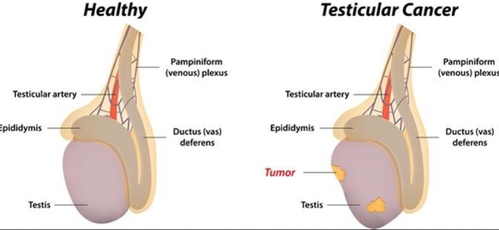 testicular cancer knee pain