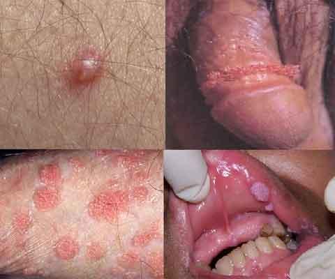 papiloma virus humano sintomas helminth therapy celiac