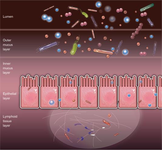 Sindromul de colon iritabil și cancerul - Cancer