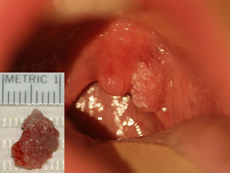 papilloma tonsil area)