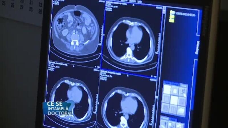 Tipuri de cancere pentru care se face RMN