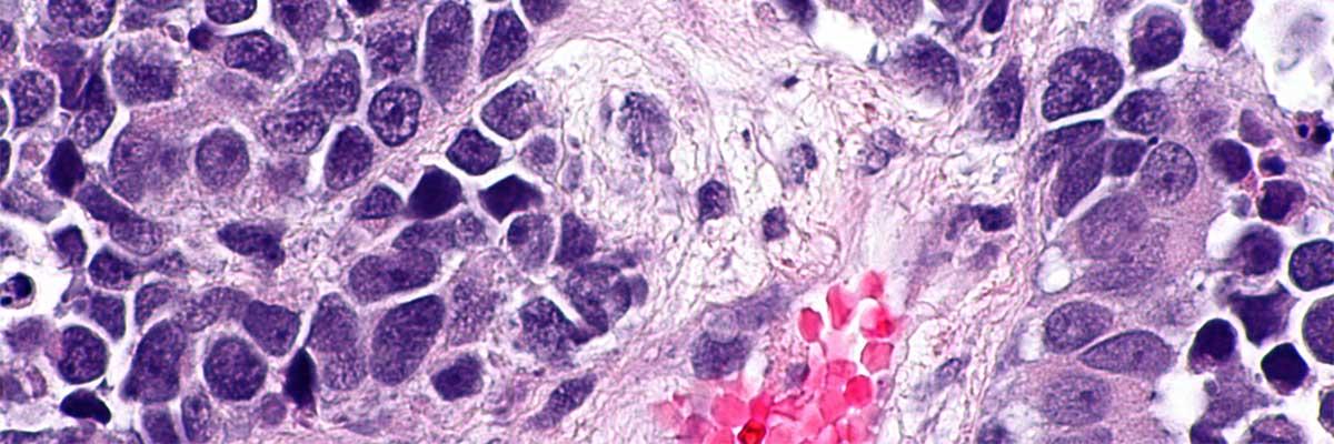 cancer vezica urinara femei cancer cerebral que es