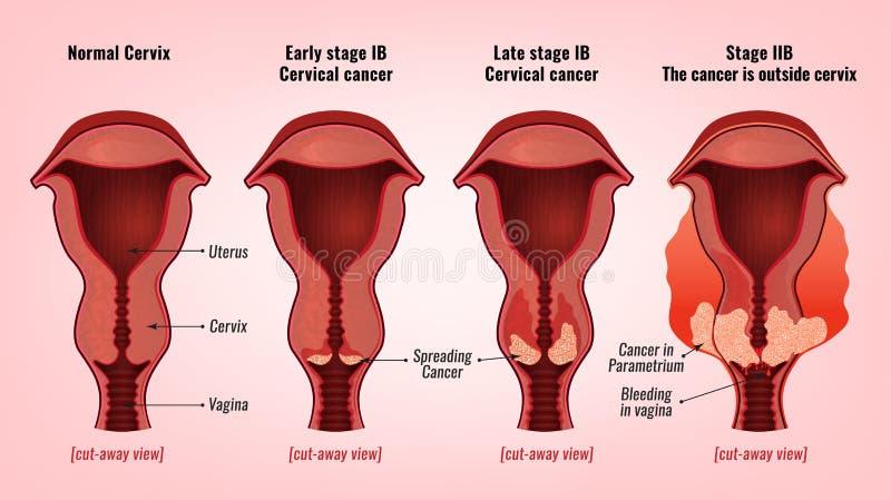 Tabloul clinic, stadiile și tratamentul cancerului de col uterin