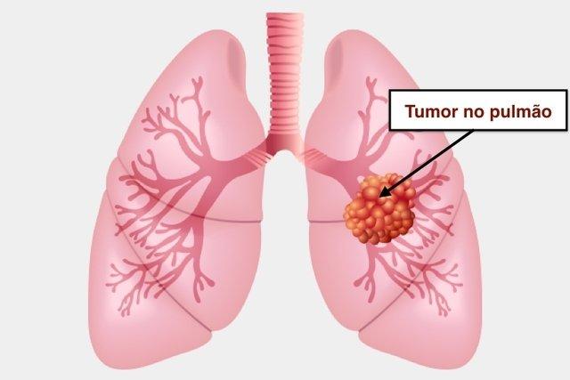 cancer metastatico no pulmao tem cura