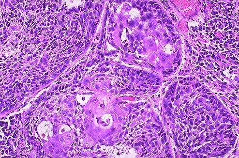 cancerul pulmonar