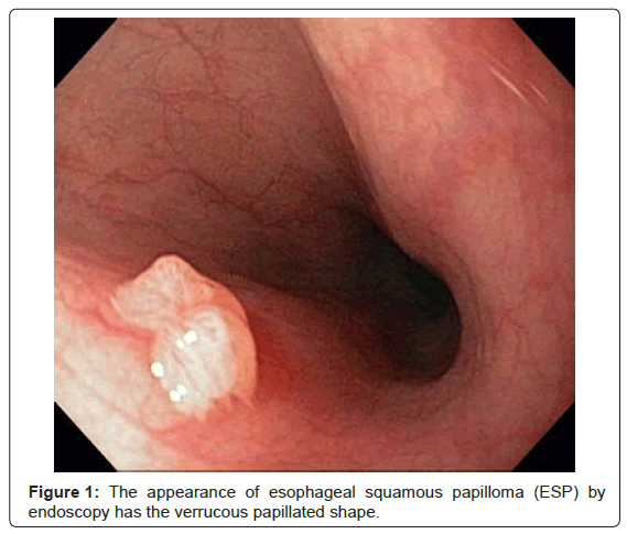 human papilloma virus in esophagus)