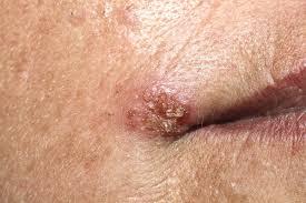papiloma humano y sintomas)