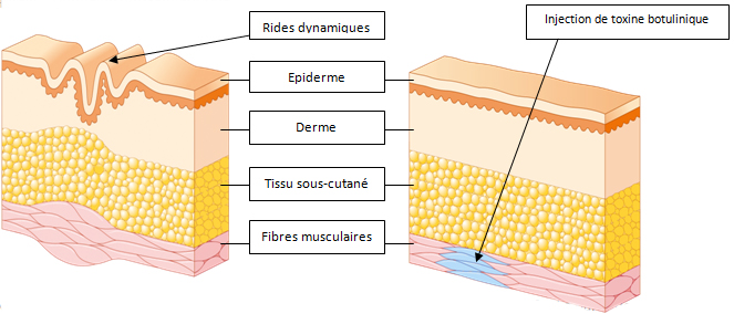 relaxant musculaire - Traducere în română - exemple în franceză   Reverso Context