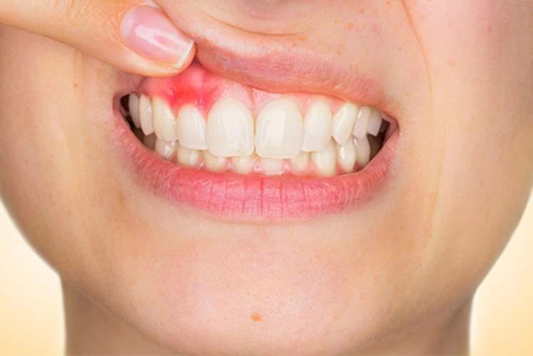 Succesul în cazul tratamentului pentru cancerul oral depinde de o genă