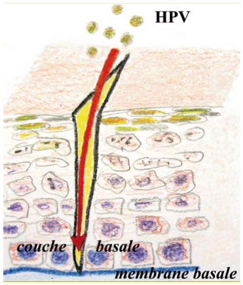 hpv cancer amygdale