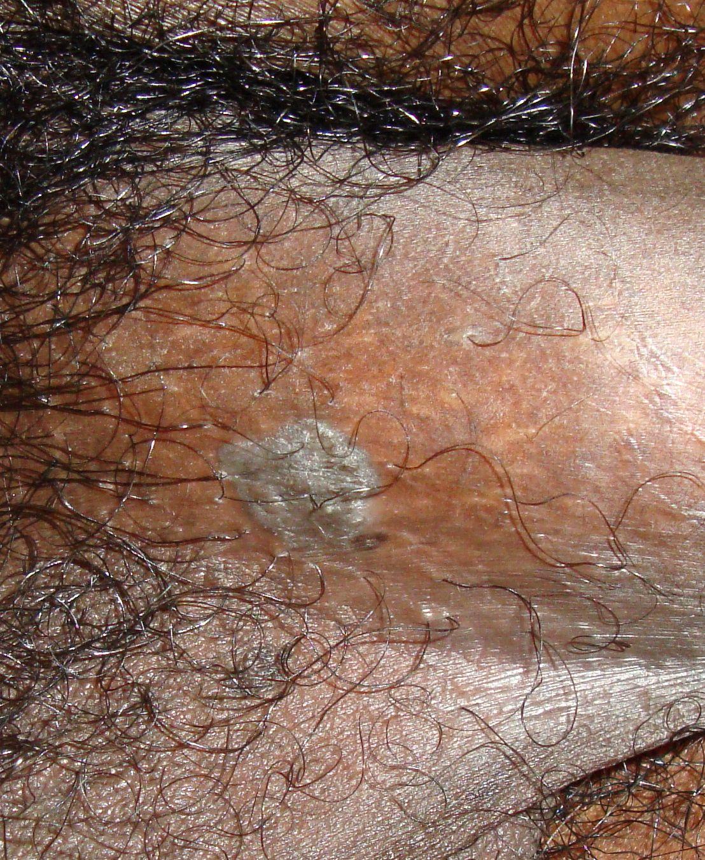 condyloma acuminata nedir