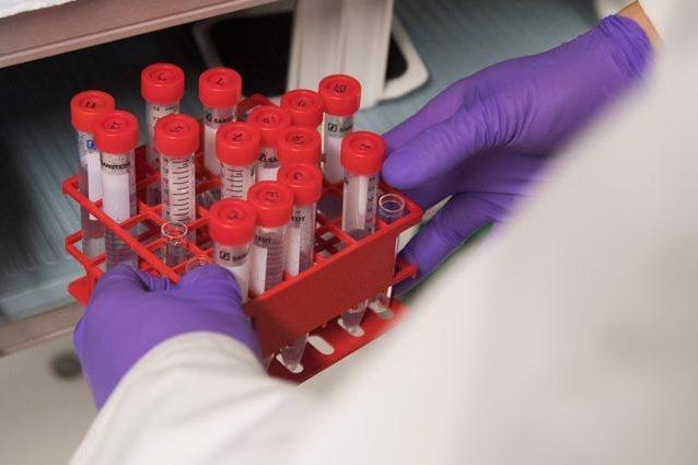 nuovo test papilloma virus paraziti wiebi