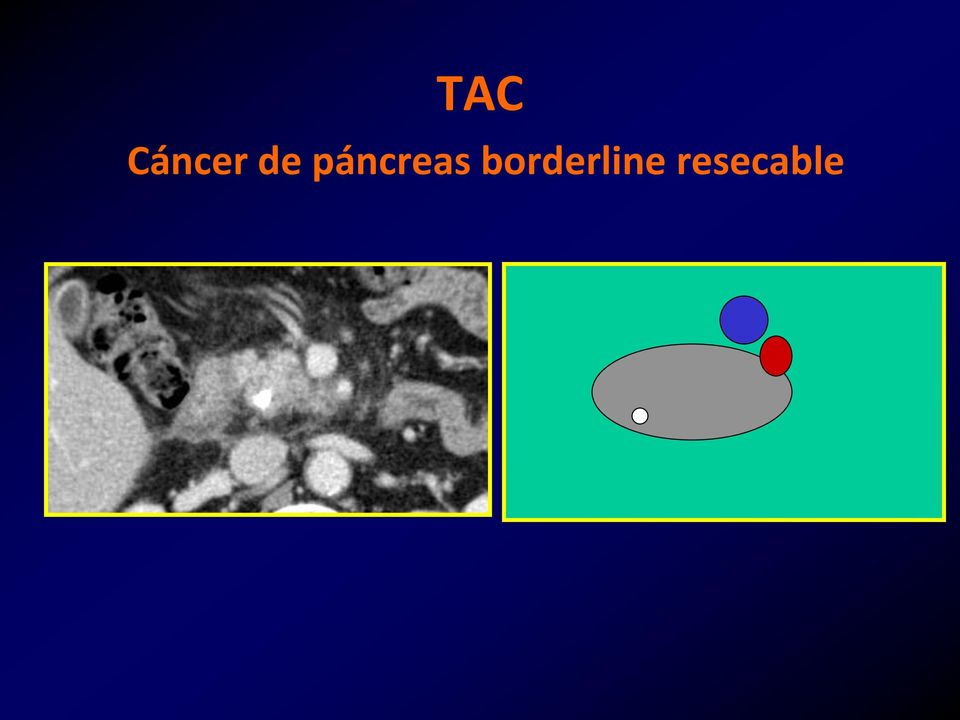 cancer de pancreas borderline