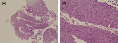 papillary urothelial malignant)