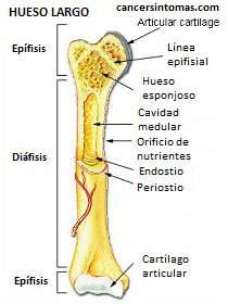 que es cancer de huesos hpv cervical cancer developing countries