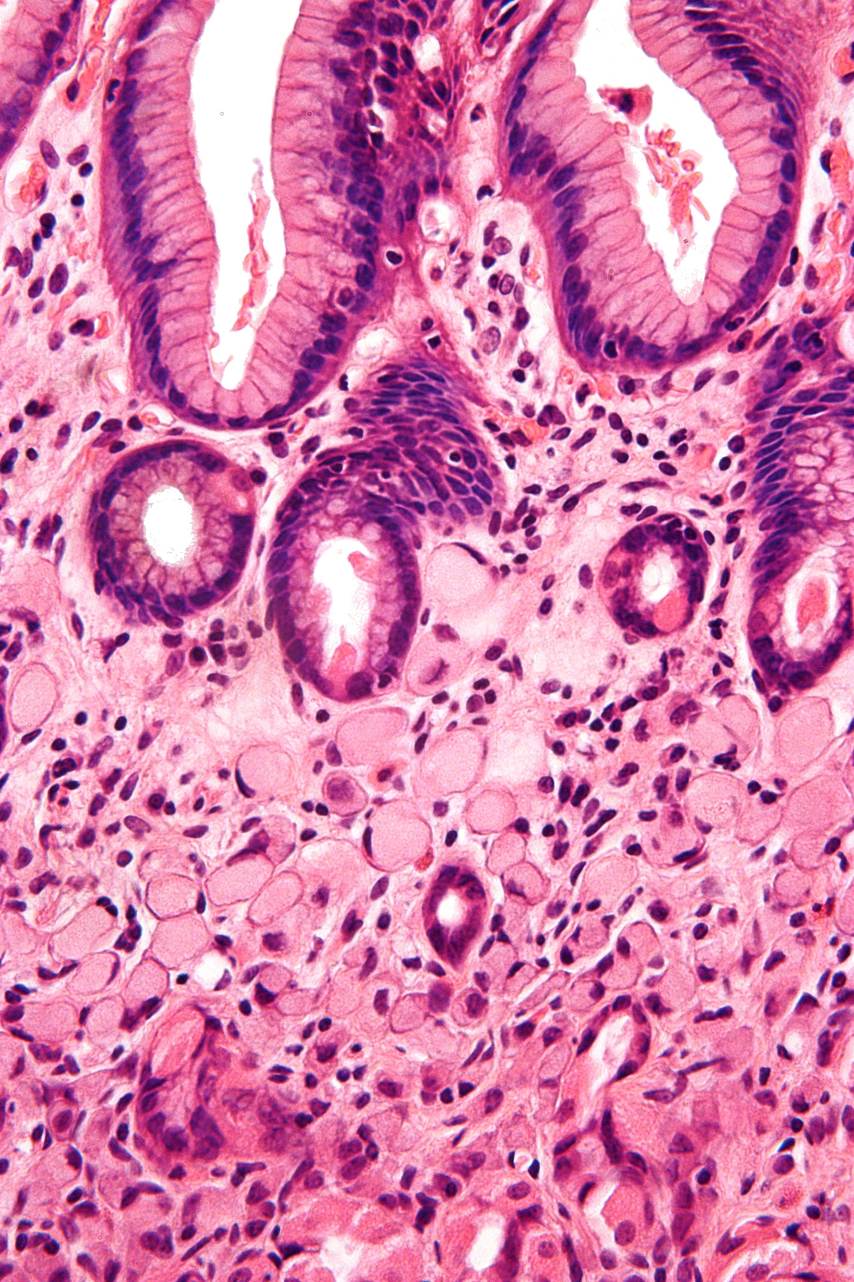 gastric cancer or adenocarcinoma