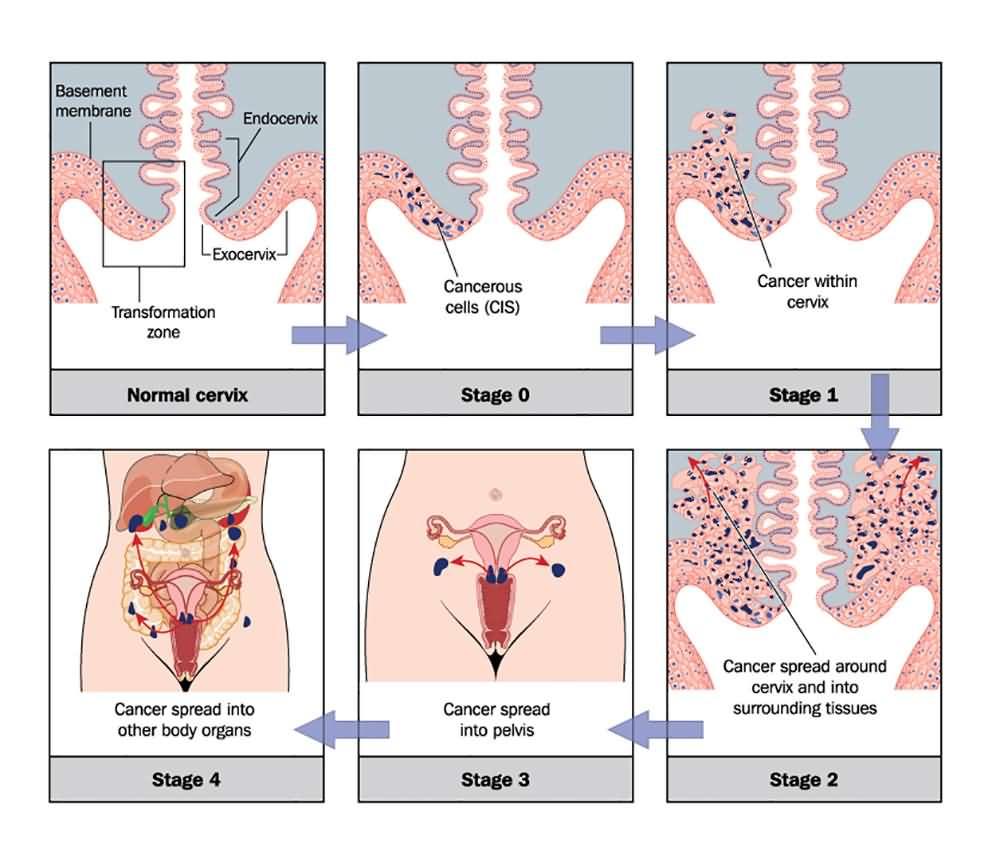 Ghid de management al cancerului de col uterin – asspub.ro