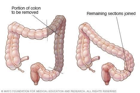 cancer de colon operacion complicaciones)
