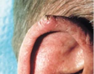 Cancerul la gât: simptome, virusul HPV, tratament