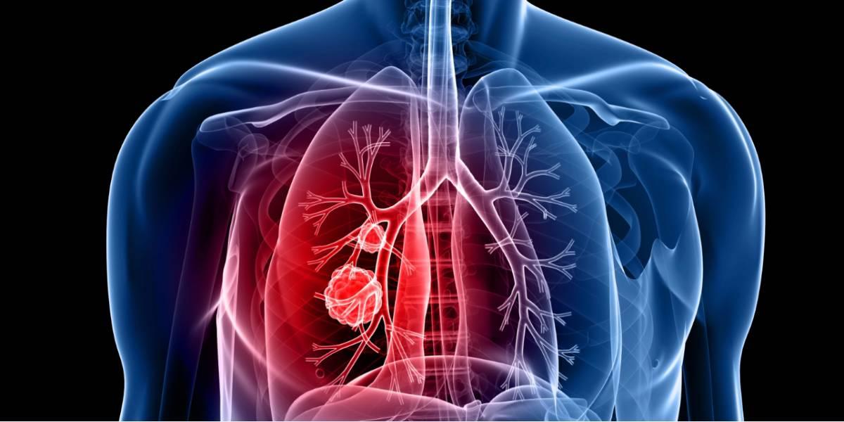 cancerul sistemului nervos hpv virus manner symptome