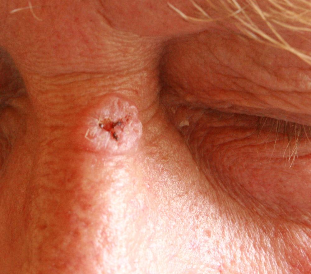 papilloma planoepitheliale cutis)
