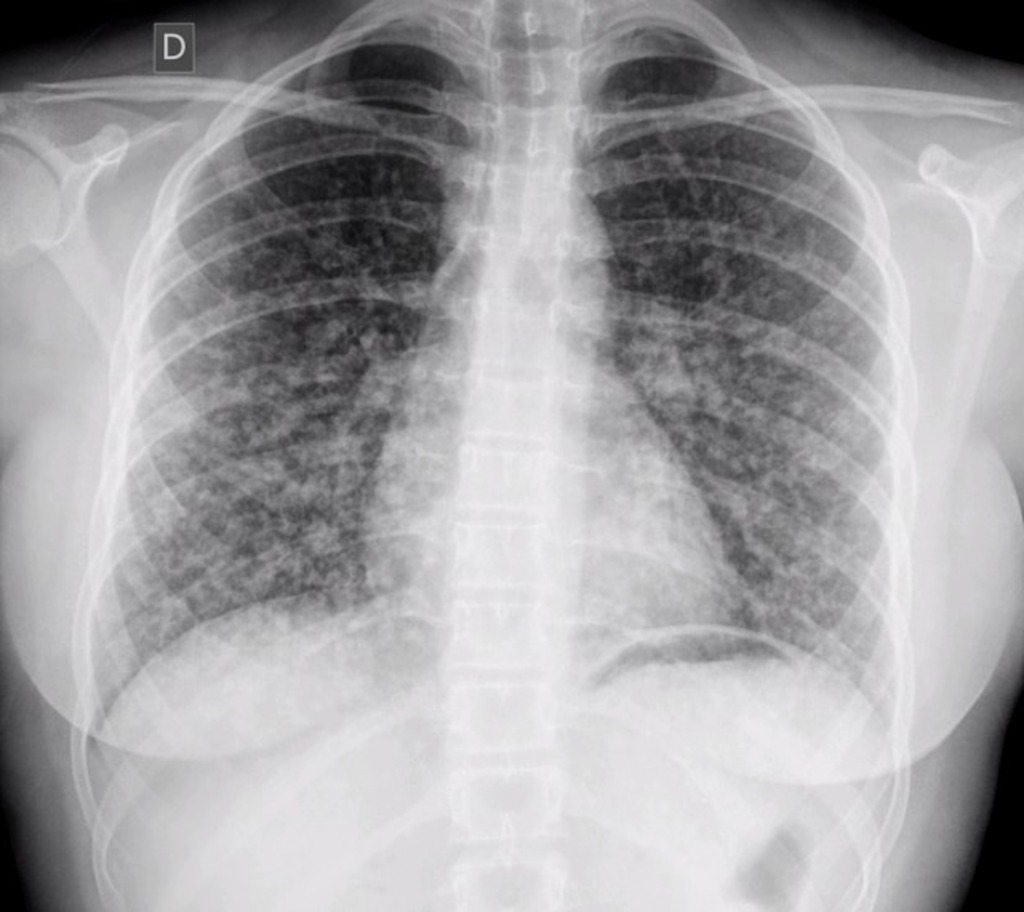 papillary thyroid cancer metastasis sites