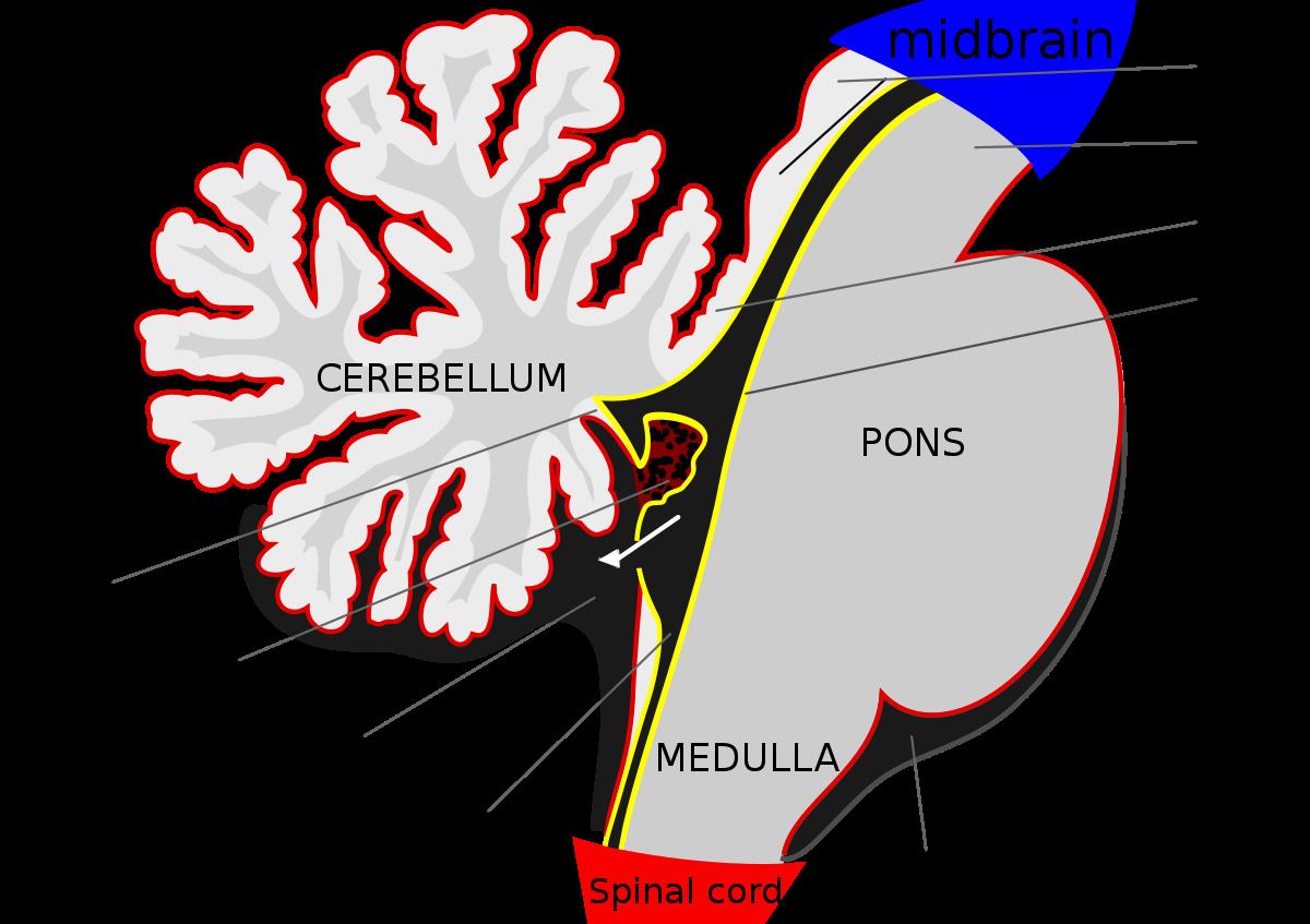choroid plexus papilloma adalah