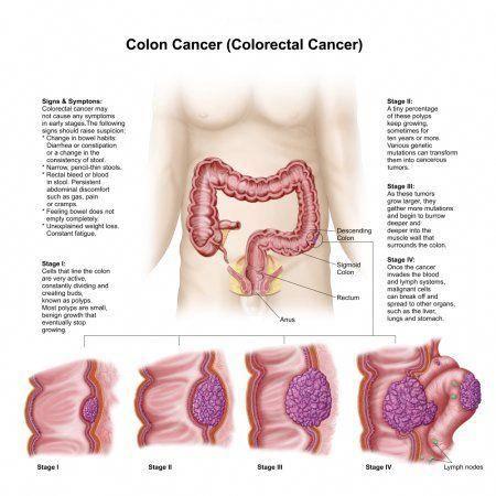 4 colorectal cancer