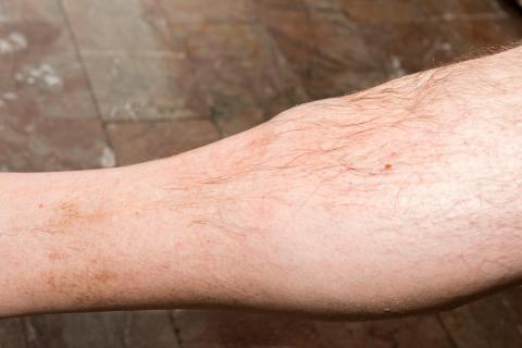cancer sarcoma tejido blando)