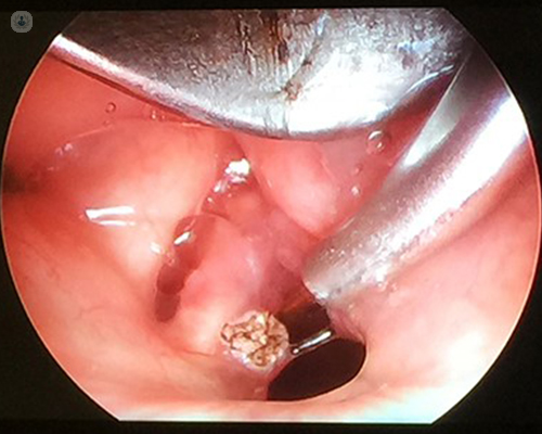 how to treat laryngeal papillomatosis)