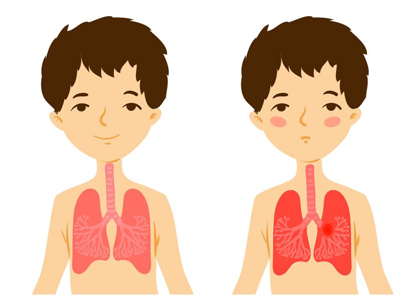 Totul despre cancerul pulmonar