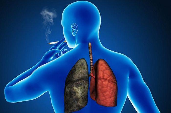 cancer pulmonar causas sintomas y tratamiento)