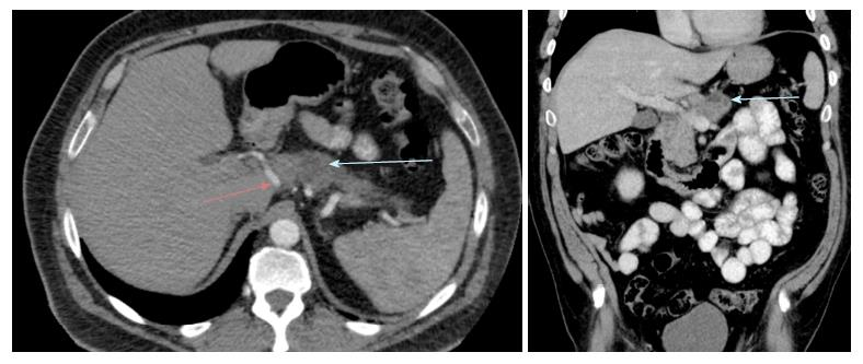 cancer de pancreas medline