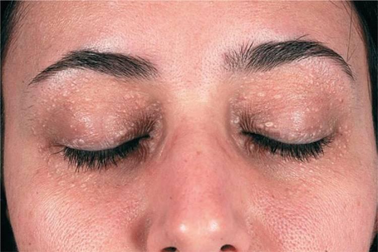 papilloma of eyelid icd 10)