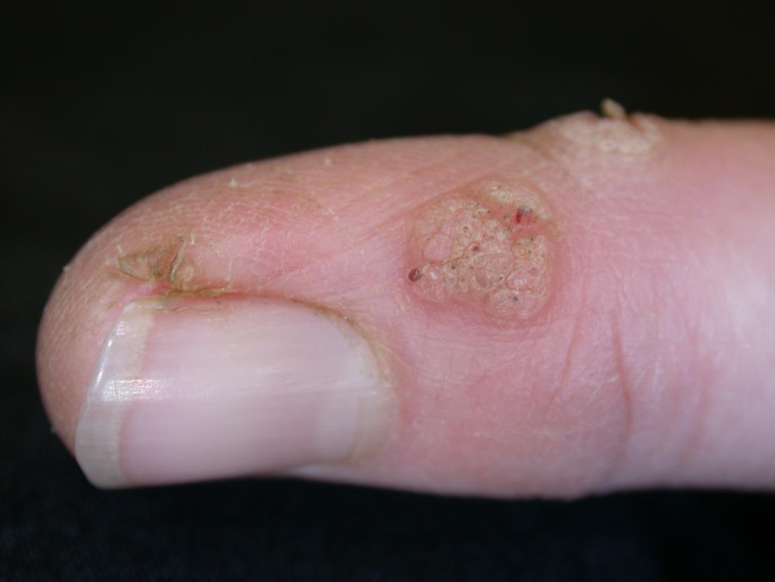 wart virus finger)