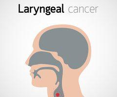 cancer malign la coarda vocala doenca de oxiurose