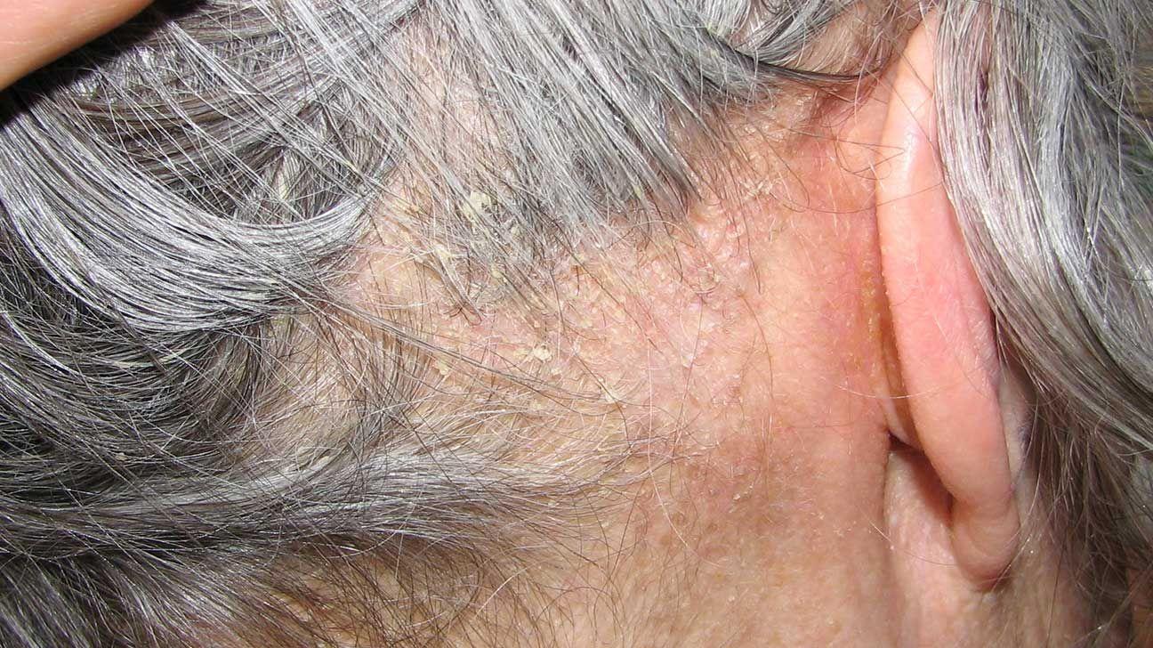 dermatita seboreica