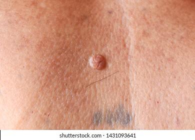 papilloma della pelle)