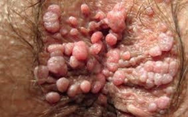 penyakit kelamin yg diakibatkan oleh human papilloma virus adalah)