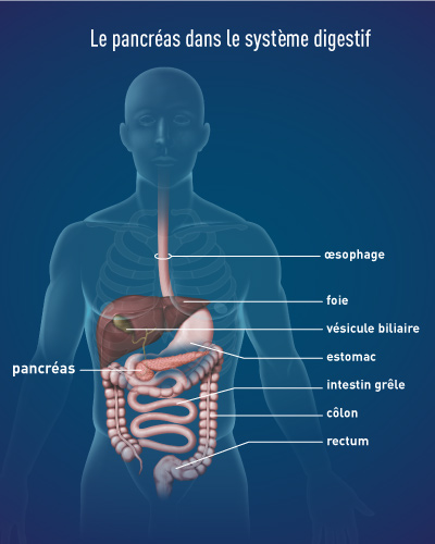 cancer de pancreas guerison)
