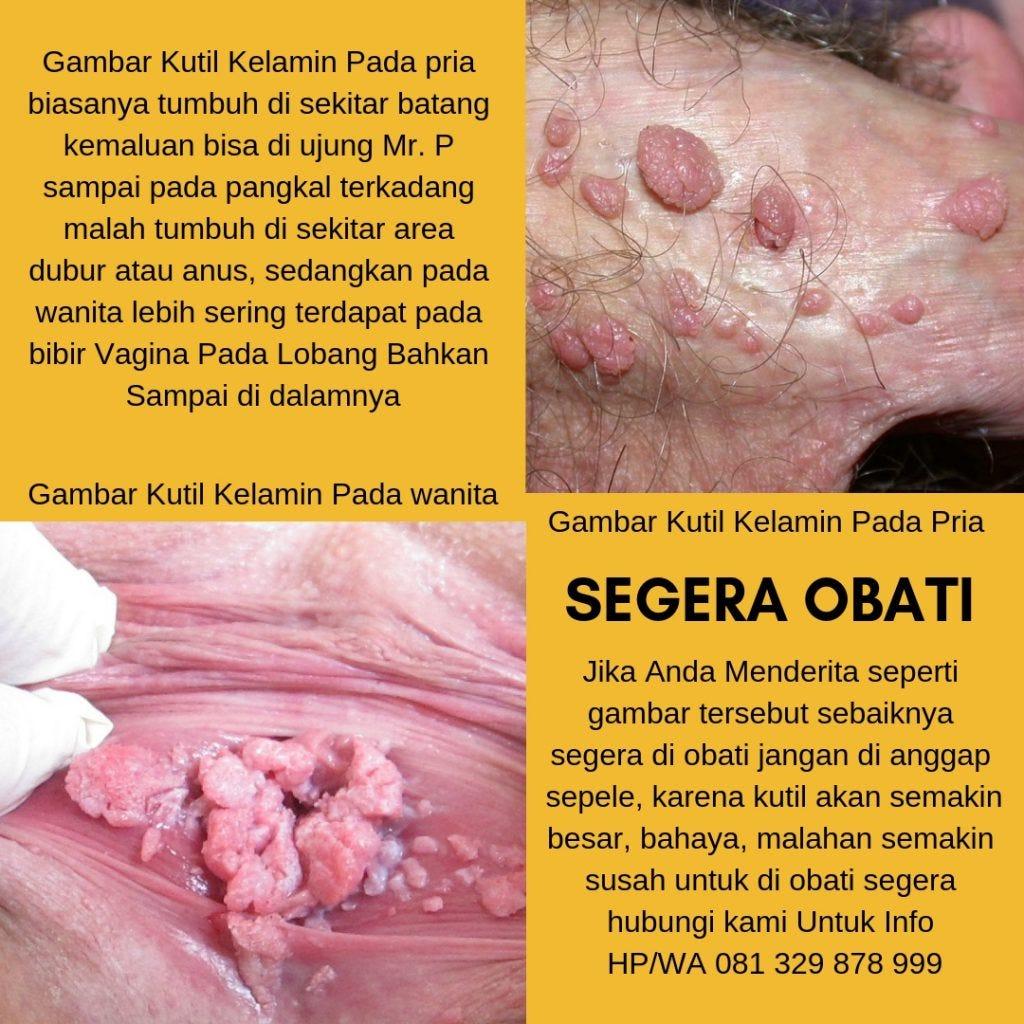 intervento x papilloma virus dermatite cronica