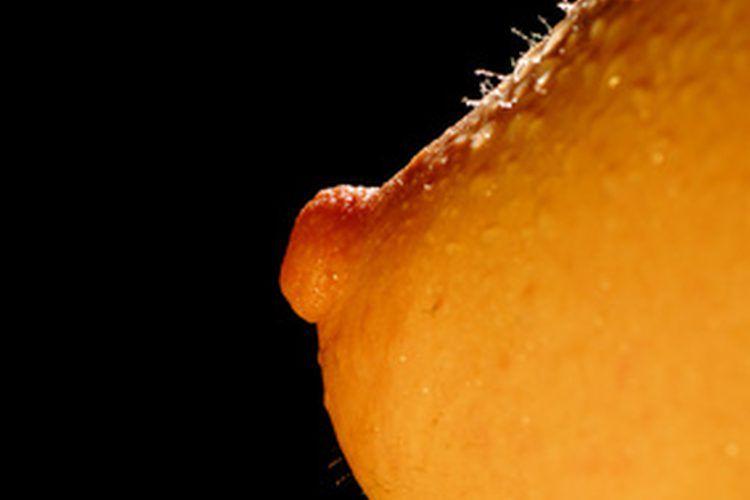 papiloma intraductal que significa)