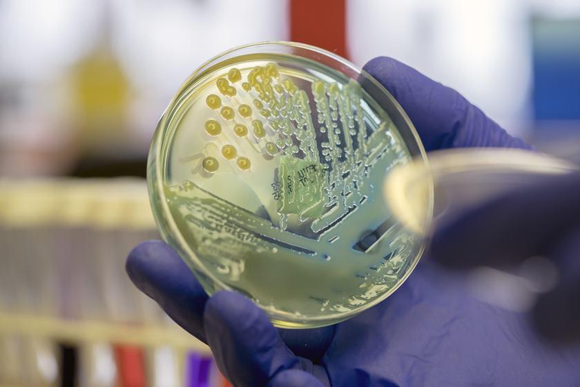 Cum își schimbă forma bacteriile pentru a putea rezista la antibiotice