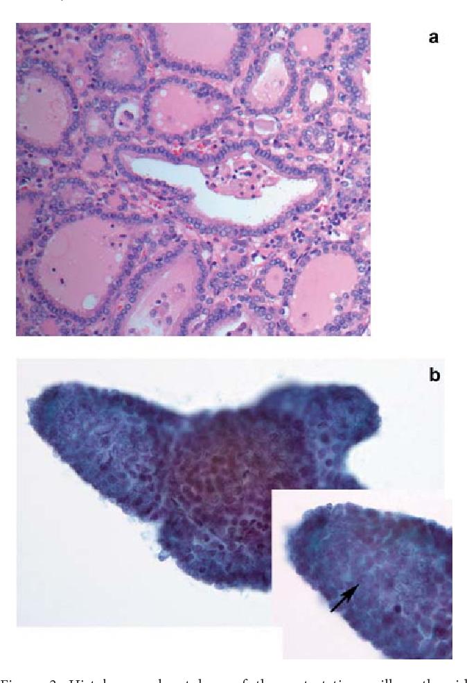 papillary thyroid cancer ovary)