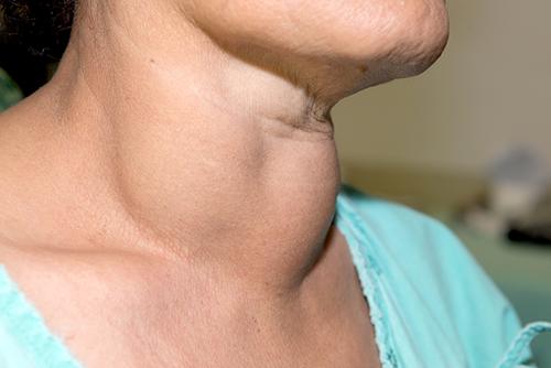 Cum trataţi cancerul de tiroidă   Romania Libera