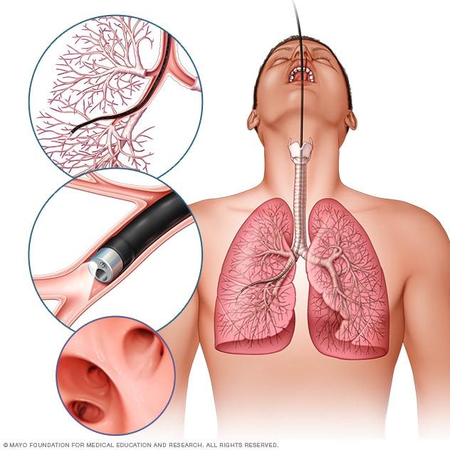 Un test de sange ar putea detecta cancerul pulmonar? | Medlife